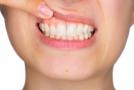 6 netikėtos priežastys rūpintis savo dantenomis