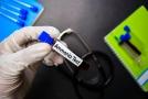 Naujos ūminės hepatinės encefalopatijos gydymo galimybės